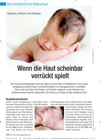 Titelbild der Ausgabe 4/2010 von Ekzeme, Schorf und Flecken: Wenn die Haut scheinbar verrückt spielt. Zeitschriften als Abo oder epaper bei United Kiosk online kaufen.