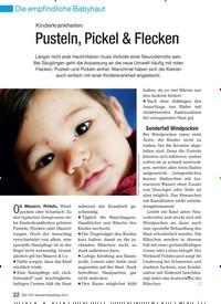 Titelbild der Ausgabe 4/2010 von Kinderkrankheiten: Pusteln, Pickel & Flecken. Zeitschriften als Abo oder epaper bei United Kiosk online kaufen.