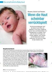 Titelbild der Ausgabe 4/2011 von Ekzeme, Schorf und Flecken Wenn die Haut scheinbar verrücktspielt. Zeitschriften als Abo oder epaper bei United Kiosk online kaufen.